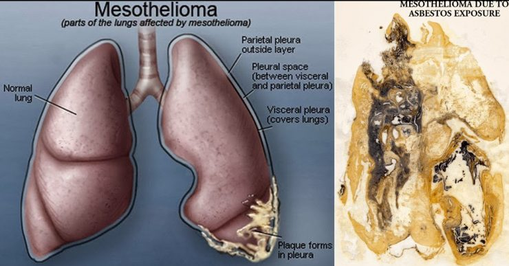 Mesothelioma Causes ,Symptoms ,Risk Factors ,Treatment ,Prognosis,Life expectancy  HowToDoAnything